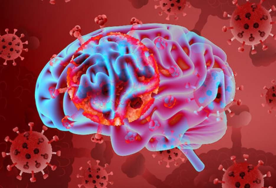 شهرکریمه – تاثیر کروناویروس بر بافت مغز و حافظه